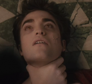 Edward's cracked skin